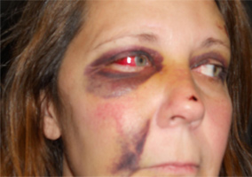 Woman Brutaly Beaten By Police [Graphic Pictures]
