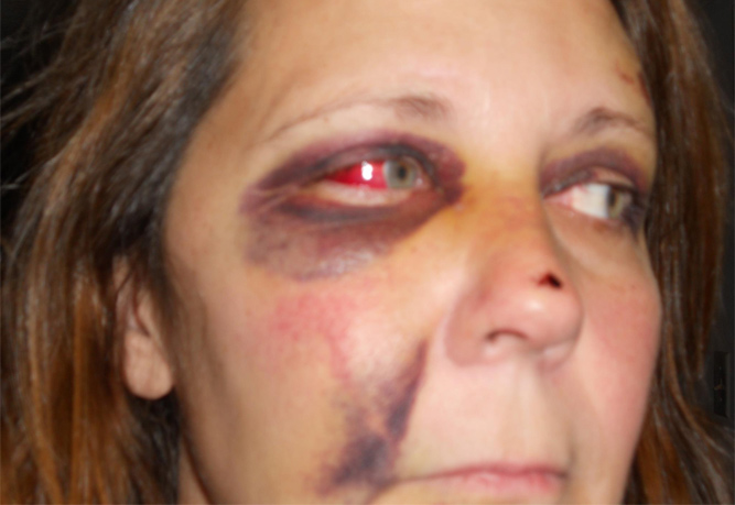 abused police woman