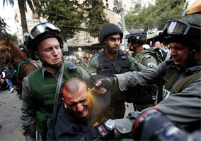 Israeli Police Use Pepper Spray On Injured Protester